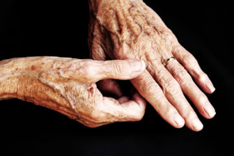 Rheumatoid arthritis often affects smaller joints, like those in the hands.